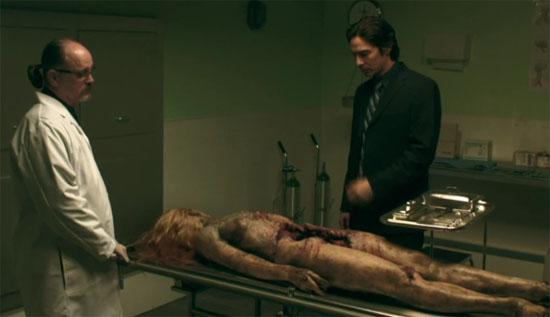 blood redd autopsy