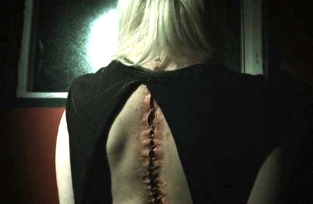 the doll back scars