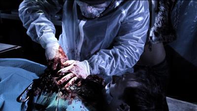Bloodline surgery